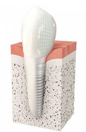 Implant dentaire Bans