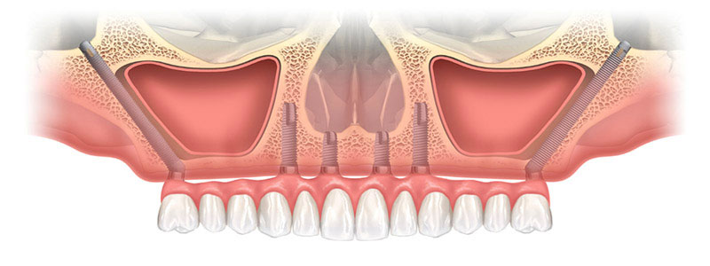 dentiste-bans